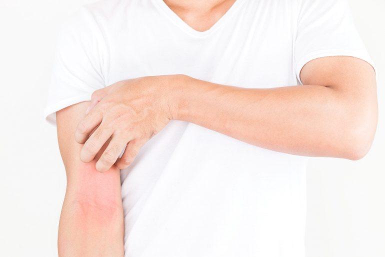 大人アトピー 名取市の皮膚科は、名取つちやま皮ふ科