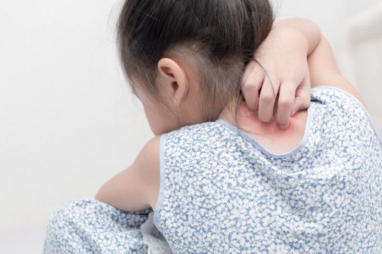 幼児アトピー 名取市で皮膚科をお探しの方は、名取つちやま皮ふ科
