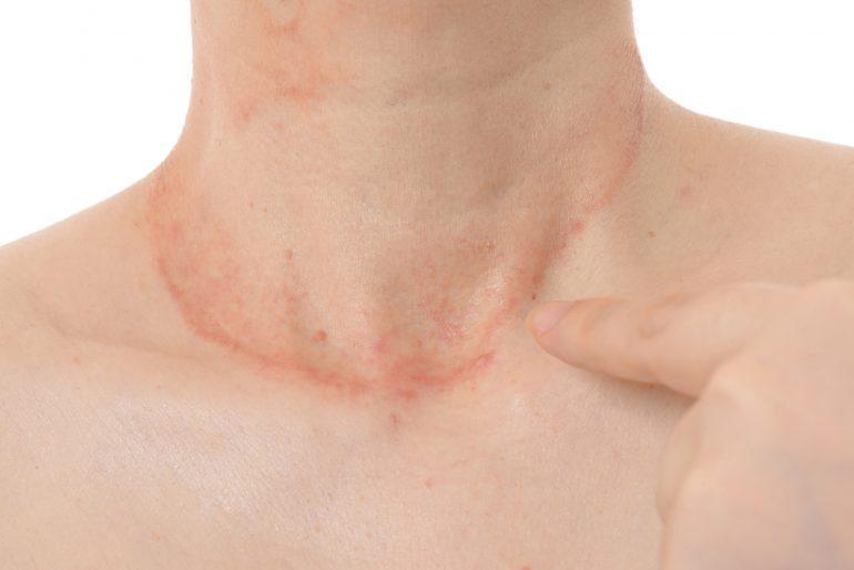 アレルギー性皮膚炎|名取つちやま皮ふ科