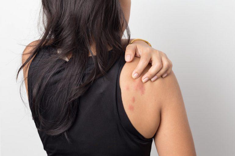 蕁麻疹|名取市で蕁麻疹の症状は、名取つちやま皮ふ科